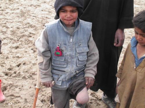 片足を失った少年